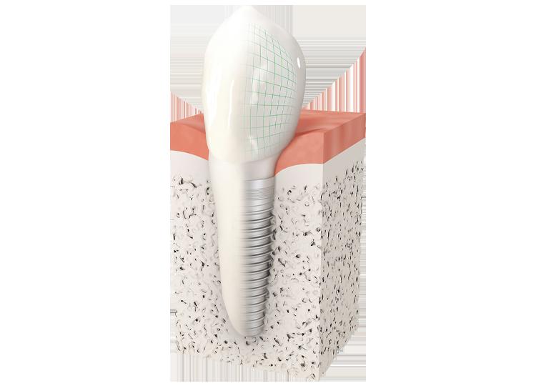 Dentiste Courbevoie