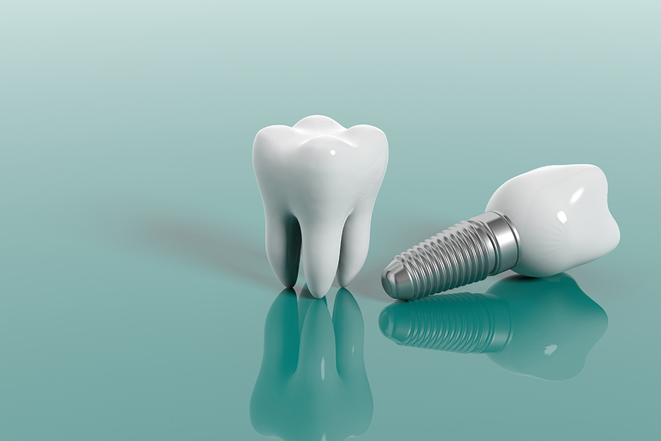 Implant dentaire Courbevoie